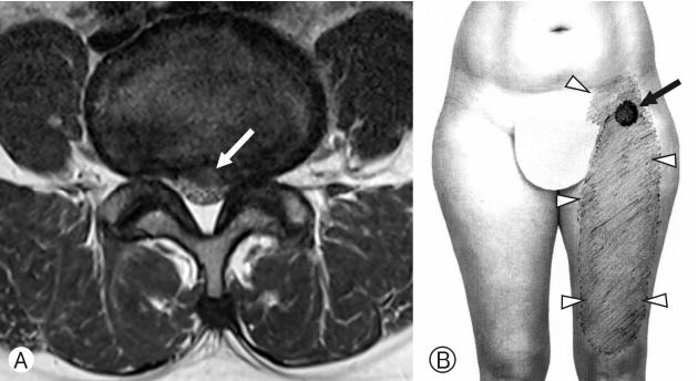 Delayed Diagnosis of Meralgia Paresthetica: A Case Report